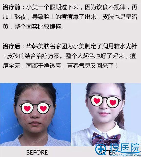 北京华韩美肤修复真人案例