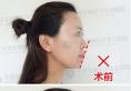 韩国医生河泰源坐诊四川华美紫馨医院,要约隆鼻下巴整形手术吗