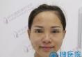 长沙叶子蒋新力院长假体隆下颏手术全记录 让你正确get小v脸