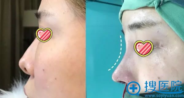 杭州艺星鼻失败修复案例对比图