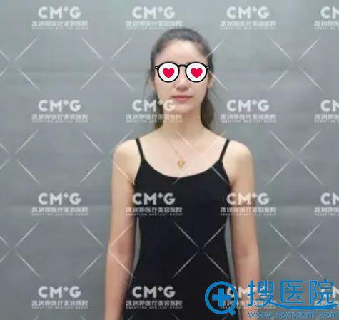 自体脂肪隆胸手术前照片