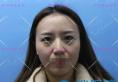 郑州明星整形的孟明星不但双眼皮做的好,面部脂肪填充也不赖