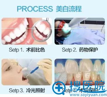 黄牙、色素牙美白流程