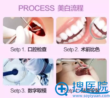 重度四环素牙、黑牙美白流程