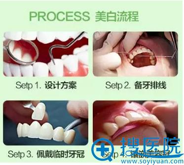 轻度四环素牙、氟斑牙美白流程