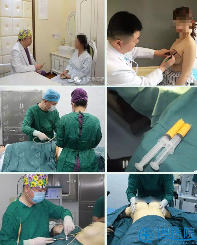 北京禾美嘉任学会自体脂肪隆胸过程