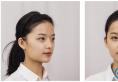 对比了上海yestar和华美医院后选择李志海做了下颌角整形