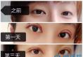 看我花6700元找杭州浙一医院叶秀娣割的双眼皮案例效果好看吗