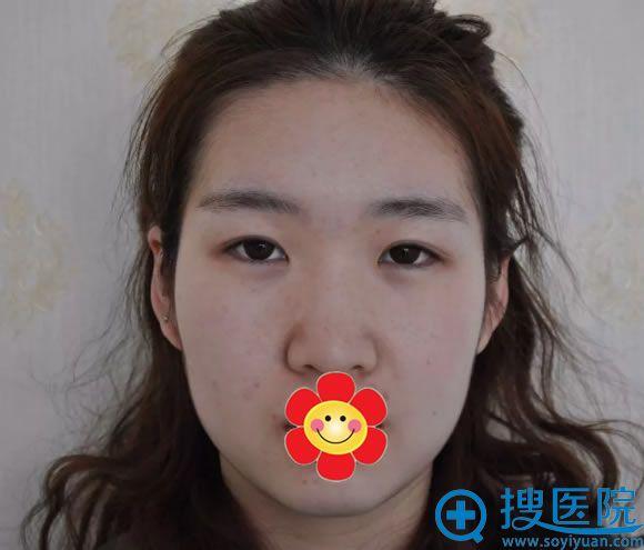 在北京嘉韵做面部整形手术前