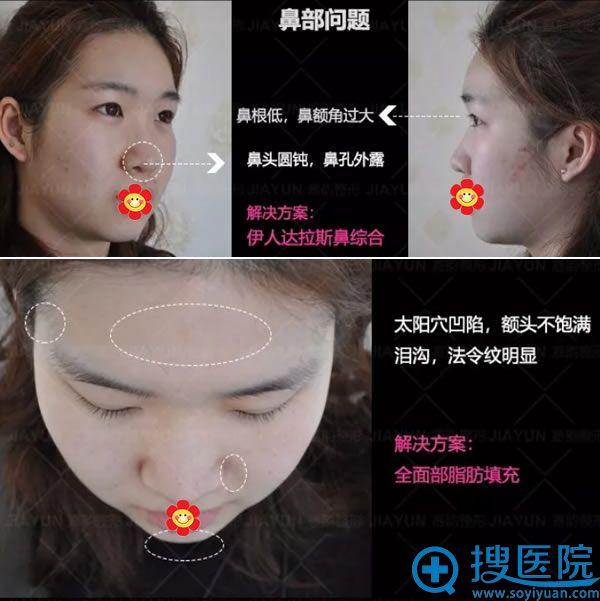 谢惠彬院长设计的鼻部及脂肪填充方案