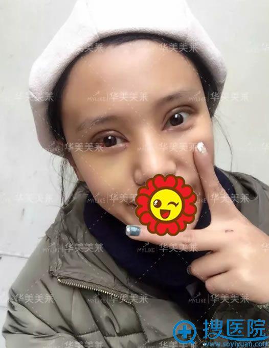 云南华美欧式平行双眼皮案例第5天