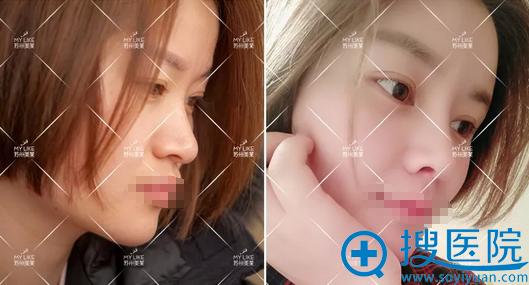 鼻综合+面部脂肪填充术后对比照
