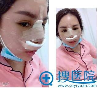隆鼻修复术后第三天鼻部有点红肿