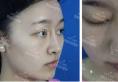 讲述她们隆鼻失败后去贵阳美莱通过达拉斯鼻综合修复成功的经历