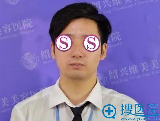 韩兴斌医生鼻综合整形案例