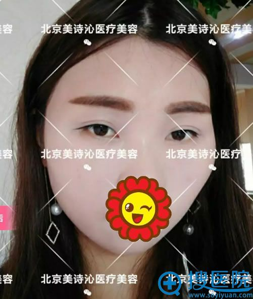 北京美诗沁去眼袋案例效果