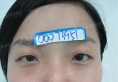 我的面部轮廓整形案例是郑州集美不动骨头改脸型提气质打造的