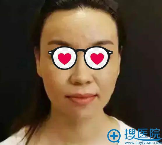 刘小姐做面部线雕提升前照片