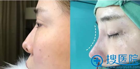 遵义韩美肋软骨鼻修复手术术后即刻对比