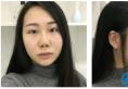 重庆新桥医院整形科刘晓伟医生隆鼻失败修复案例术后50天效果图