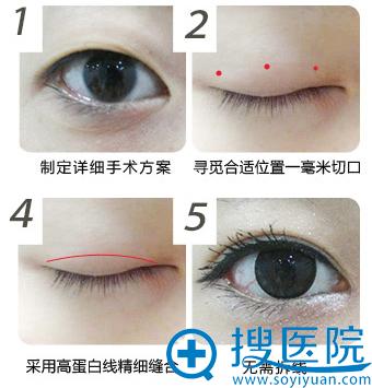 睛彩美瞳术手术过程