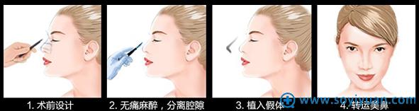 假体隆鼻手术过程图