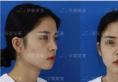 昆明华美美莱玻尿酸隆鼻丰下巴案例 只是微微一整颜值立马上升