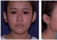 给你们看上海长征医院刘安堂医生给我做的肋软骨鼻综合隆鼻效果