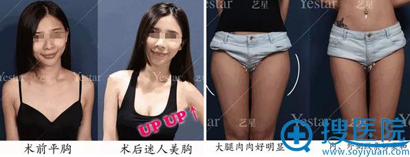 脂肪丰胸及大腿吸脂术后对比