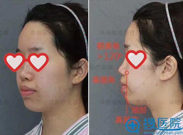 假体隆鼻失败的侧面照