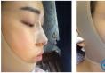 不得不说我找上海天大刘先超做的下颌角截骨手术效果确实不错