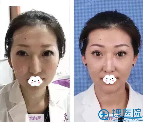 天津美莱员工纹眉前后对比