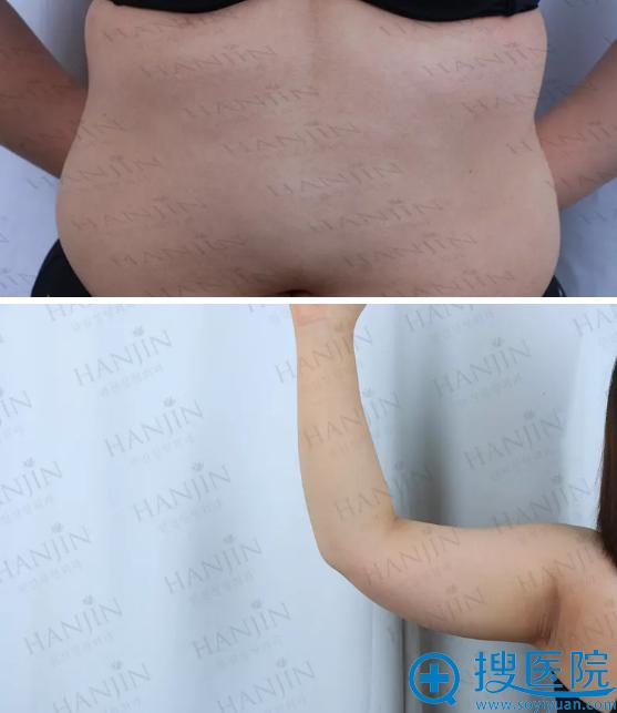 吸脂手术前的手臂和腰腹部照片