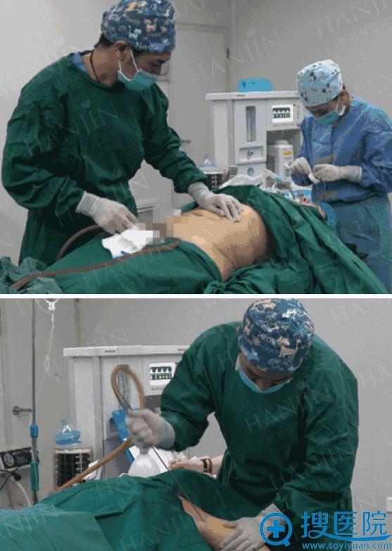 昆明韩辰手臂吸脂手术过程图