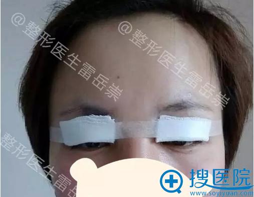 扬州雷医生双眼皮修复术后即刻