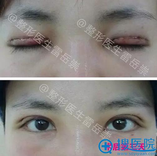 双眼皮修复术后3天睁眼闭眼效果