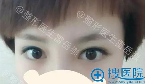 雷岳崇微创双眼皮术后半个月恢复效果