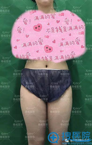 做大腿吸脂手术前的照片