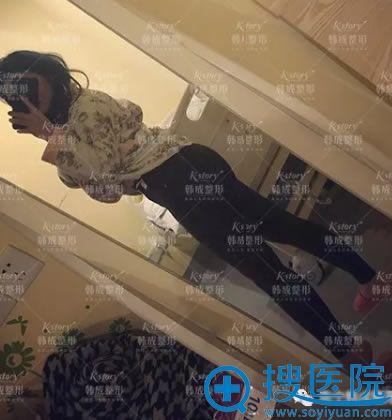 南宁韩成大腿吸脂案例5天效果