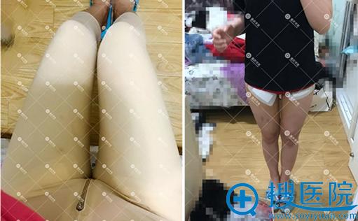 张梅大腿吸脂术后7天效果