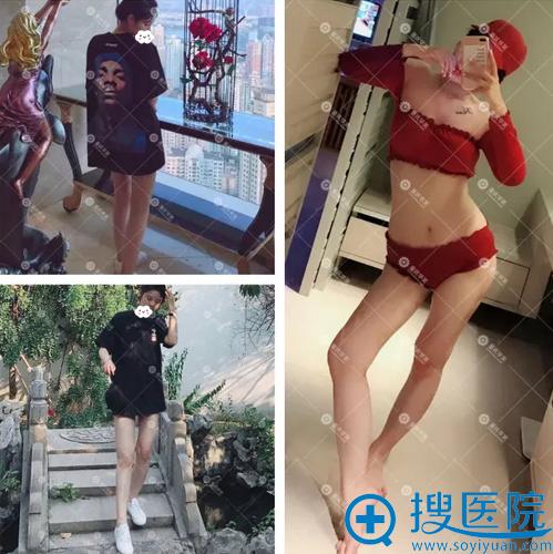 重庆华美大腿吸脂术后恢复照片