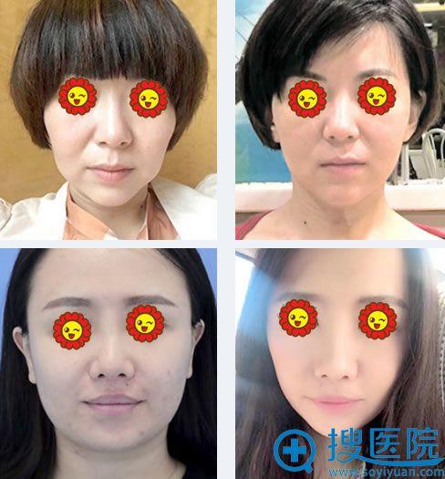 北京八大处线雕提升真人案例图
