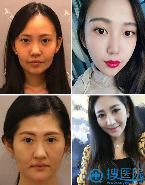 北京润美玉之光面部线雕真实案例