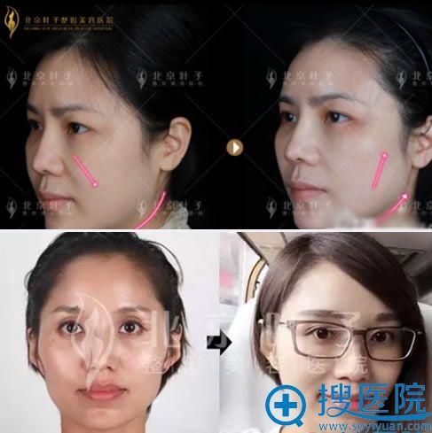 北京叶子面部线雕提升案例图