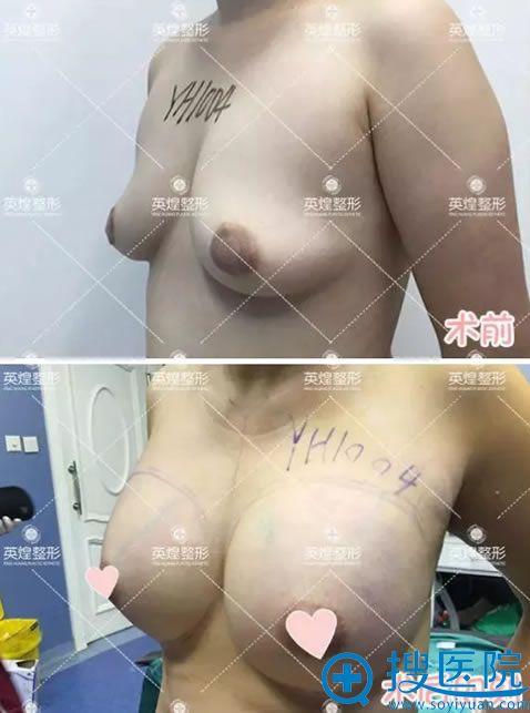 自体脂肪隆胸手术即刻站立的效果