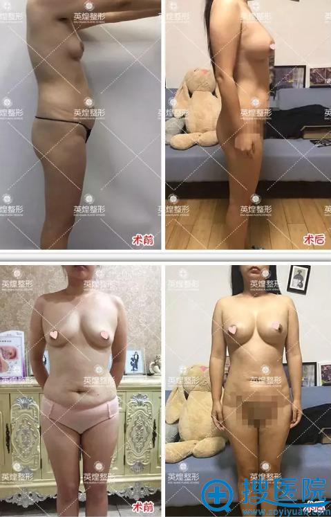 北京英煌自体脂肪隆胸前后效果对比