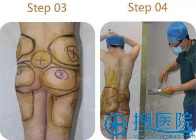 王明利自体脂肪丰臀手术过程