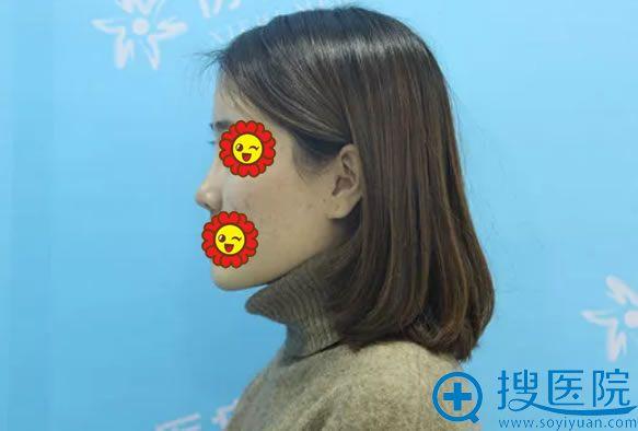 莎莎做鼻综合整形手术前的塌鼻