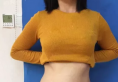 对比了济南美莱和海峡选择逄宝峰做的腰腹部抽脂术后恢复过程图
