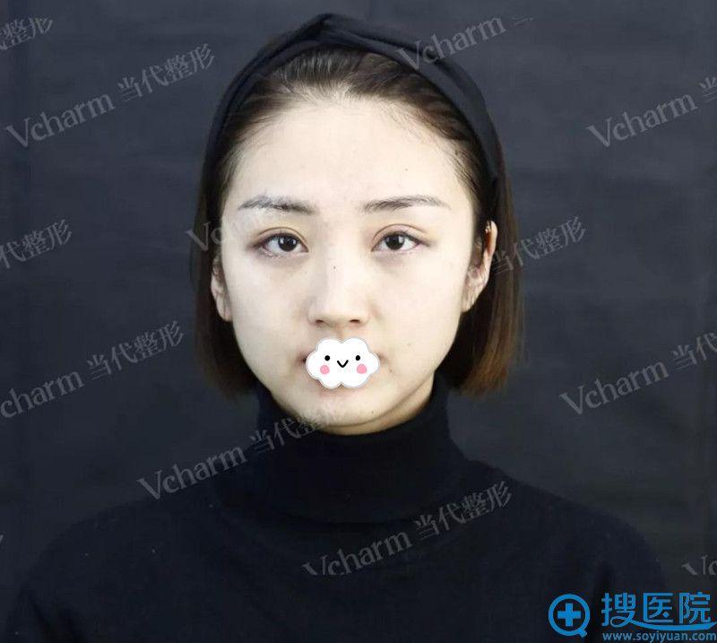 重庆当代注射瘦脸针术前照